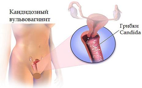 Кандідоз статевих органыв фото фото 756-824